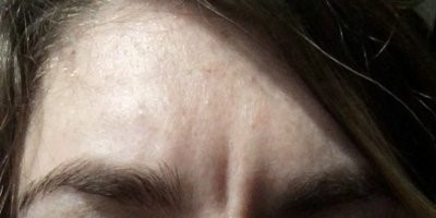 Forehead furrows caused by loose skin